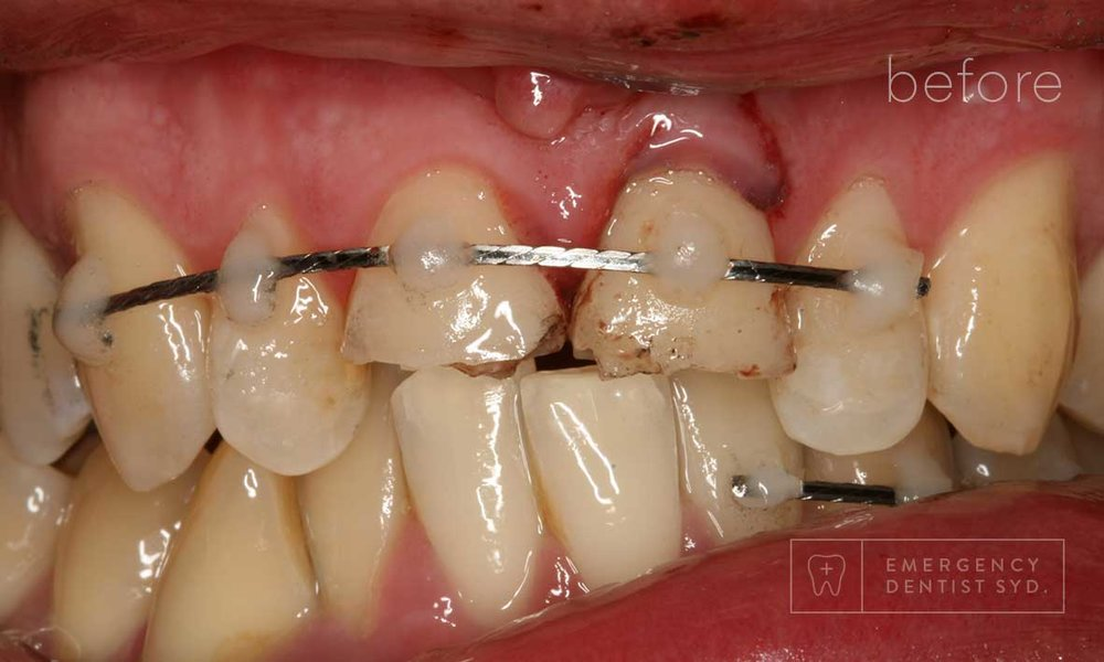 Treatment: Splint & Observation over several weeks + dental bonding
