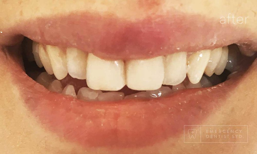 © Emergency Dentist Sydney Smile Gallery Before and After Teeth 1-after.jpg