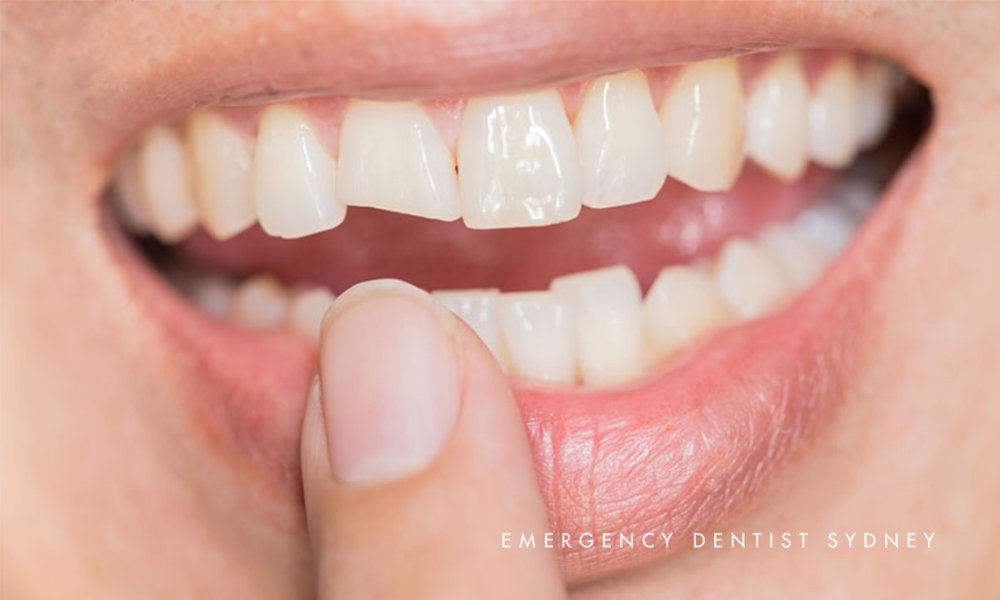© Emergency Dentist Sydney Cracked Tooth 02.jpg