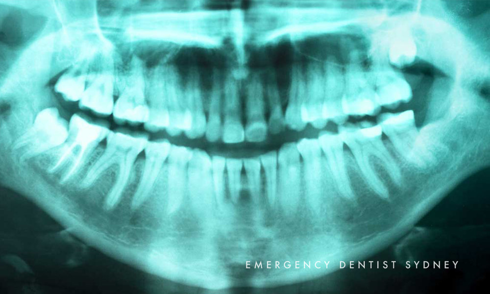 © Emergency Dentist Sydney Cracked Tooth 04.jpg