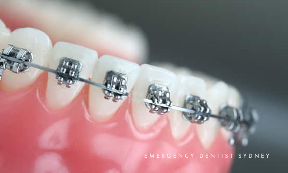 © Emergency Dentist Sydney Dental Repairs to Fixtures 04.jpg