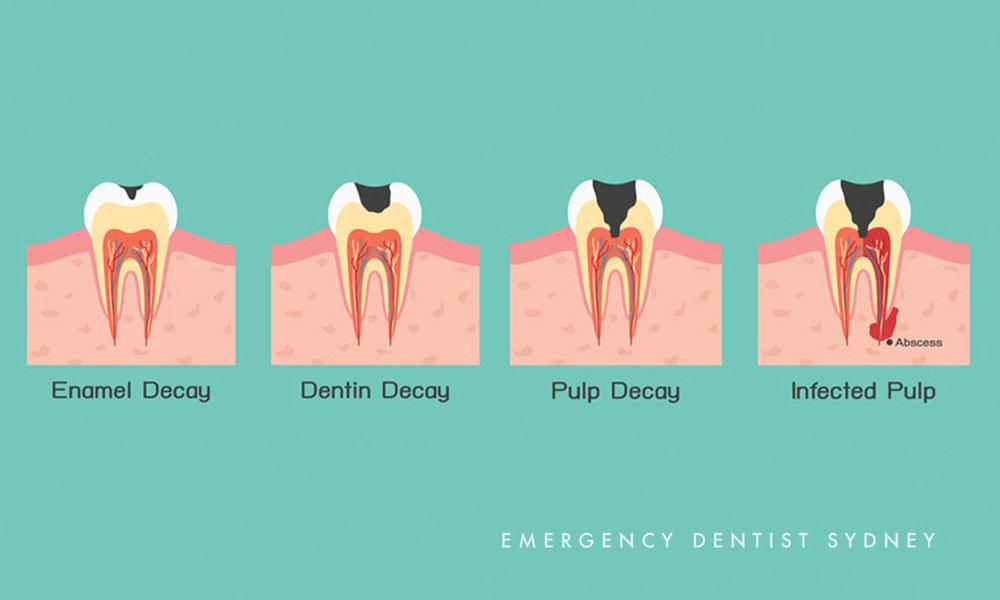 © Emergency Dentist Sydney Tooth Pain 04.jpg