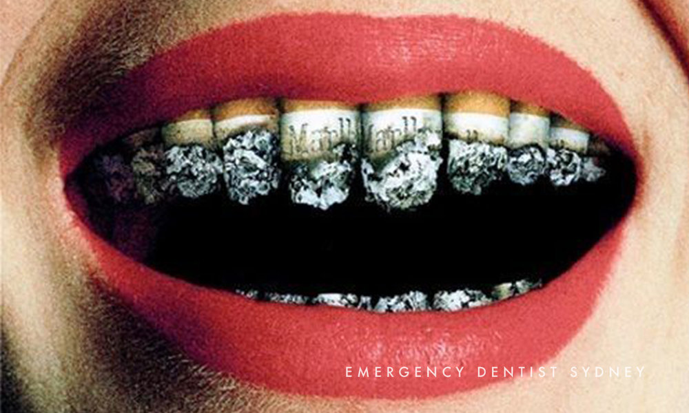 © Emergency Dentist Sydney Tips on Cavities 04.jpg
