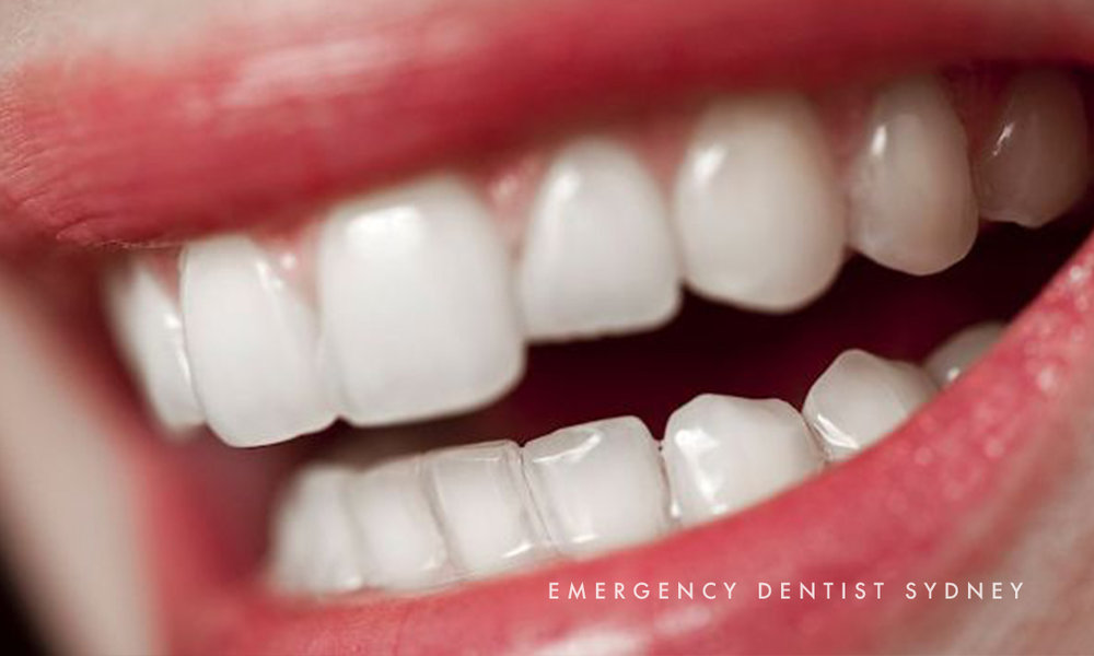 © Emergency Dentist Sydney Tips on Cavities 02.jpg