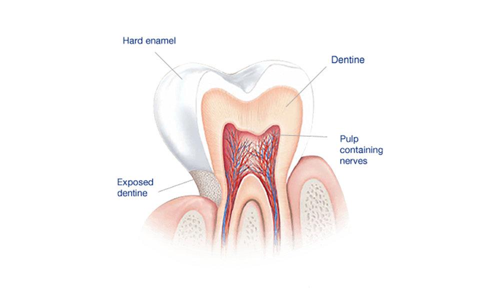 © Emergency Dentist Sydney Tooth Enamel 04.jpg