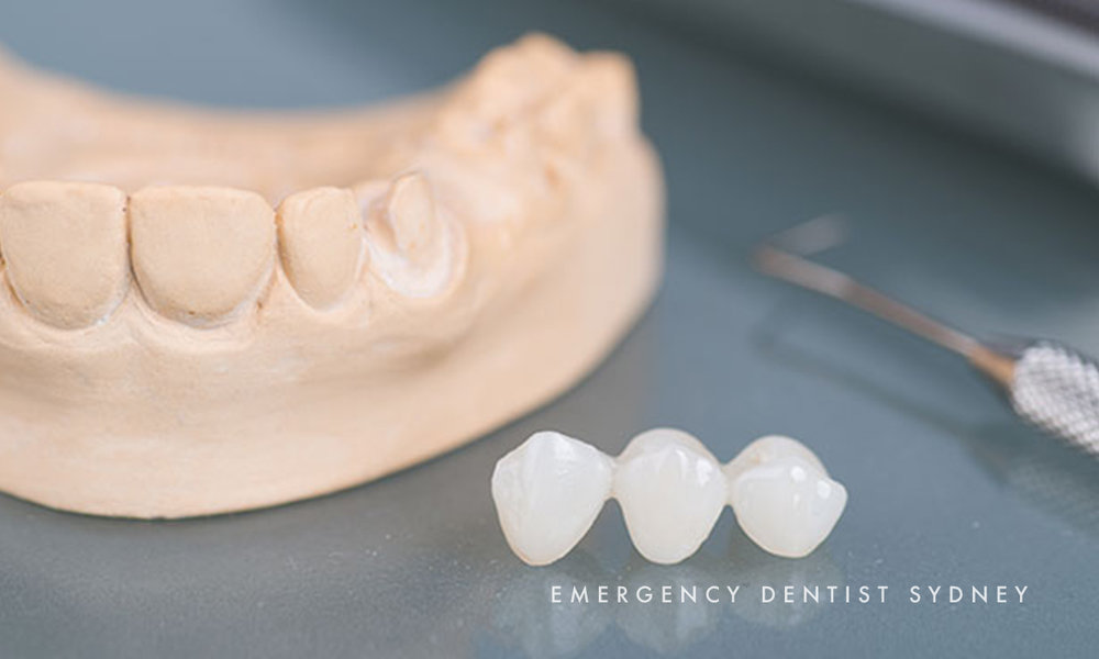 © Emergency Dentist Sydney Tooth Extraction 03.jpg