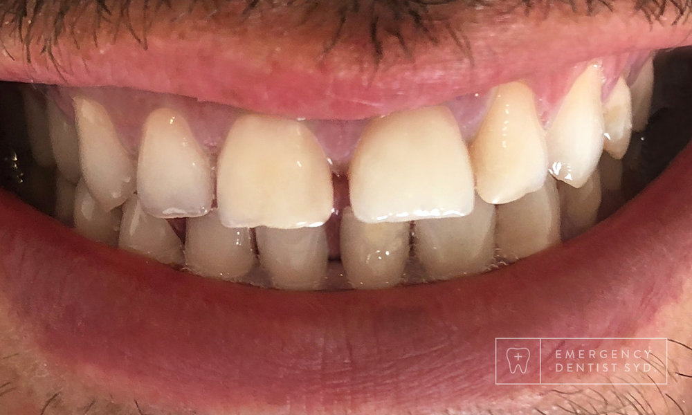 After: Crowns and Composite Bonding