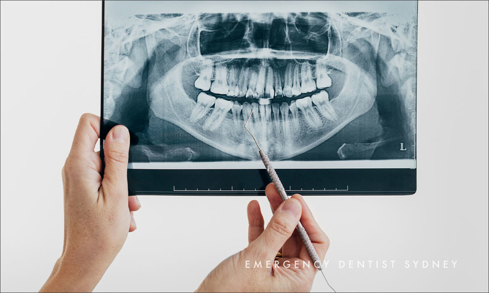 ©-Paramount-Dental-Sydney-What-To-Expect-From-Pulp-Extirpation-02.jpg