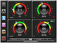 Patton Design and Edwards Lifesciences Corporation creates the most advanced GUI [Graphic User Interface] in the heart monitoring industry. The physiologic status of the patient has been created in an entirely new, intuitive and meaningful way. EV1000 clinical platform offers scalability and adaptability in both the OR and ICU. -