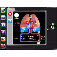 EDWARDS SAVING PATIENTS LIVES EV1000 Revolutionary bionic metaphor GUI for cardio-pulmonary monitoring