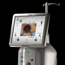 BAUSCH & LOMB STELLARIS PHACO SYSTEM Advancements in cataract surgery