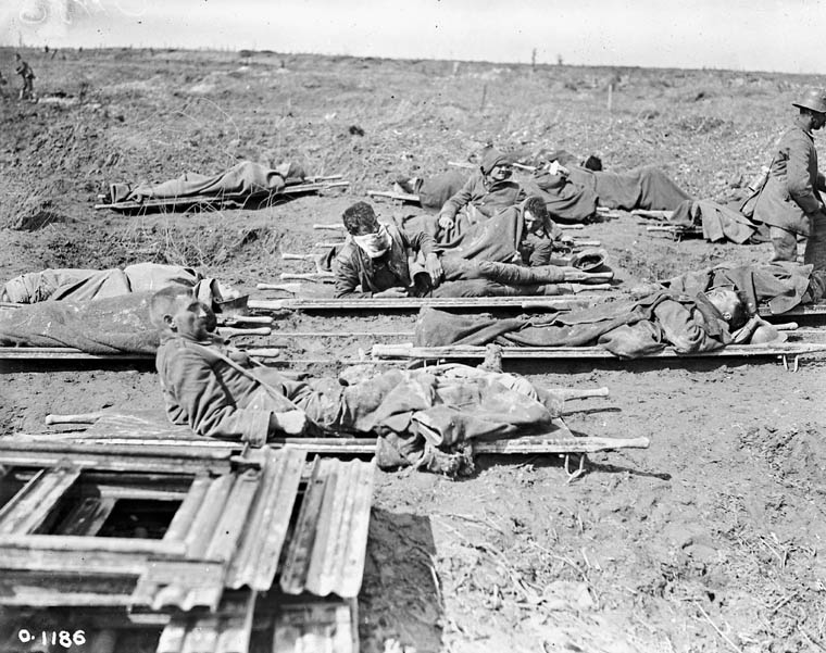 Title: Stretcher cases waiting to be loaded on light railway, April 1917  Date: Between April 9 to 14, 1917  Credit: Photo courtesy of Library and Archives Canada