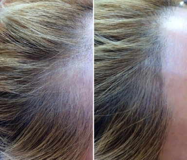 Before and After 1st Session. Depending on your degree of thinning/hair loss, you may need 2-3 sessions for optimal results