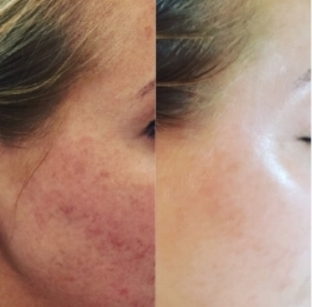 BEFORE AFTER   Our Client one week after her very first photo facial to remove red and dark pigment. Three treatments every four weeks is recommended for optimal results.