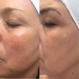 BEFORE                                                        AFTER   Our Client one week after her FIRST Photo Facial to treat red pigment and increase collagen production. Three treatments are recommended for optimal results every 4 weeks.
