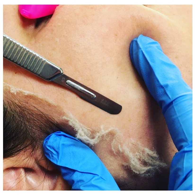 686784f096f Bare Element Laser Salon in Rochester, NY offers Dermaplaning. Dermaplaning  involves the use of a scalpel to exfoliate at an extreme level removing a  layer ...