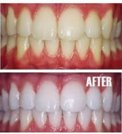 5869dbfa237 Bare Element Laser Salon in Rochester, NY offers Professional Teeth  Whitening. According to a study conducted by OralB, you can look five years  younger and ...