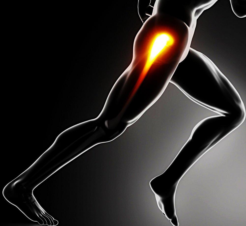 Runner Hip Pain.jpg