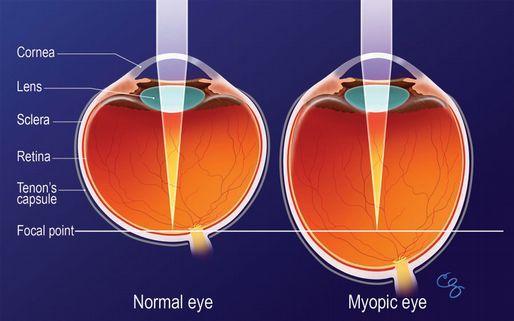 myopia control.jpg