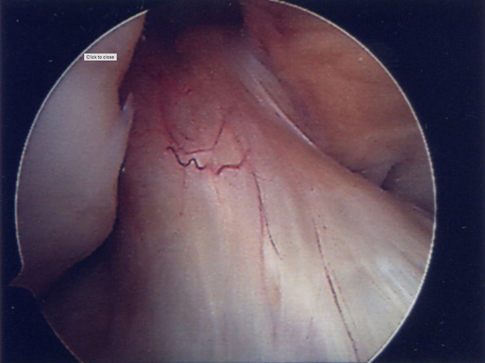 Images from arthroscopy showing intact ACL