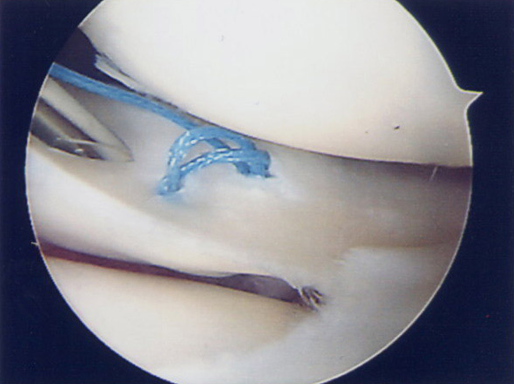 Arthroscopy image showing repair of a meniscal tear using a suture.