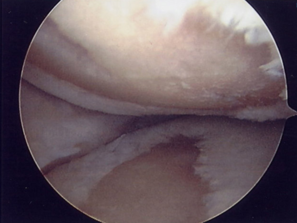 Arthroscopy image showing bone-on-bone arthritis, with complete loss of cartilage from areas on both the femoral and tibial surfaces of the joint.