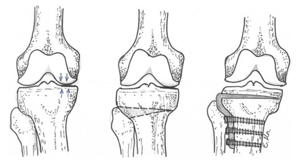 These pictures show before and after a proximal tibial osteotomy, where the tibia has been refashioned below the knee joint to relieve pressure on the inside (medial) aspect of the knee.