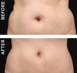 coolsculpt before and after