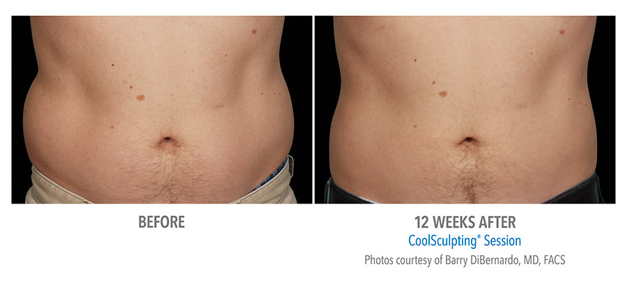 CoolScuplting - Chestnut Hill Plastic Surgery & Aesthetics male.jpg