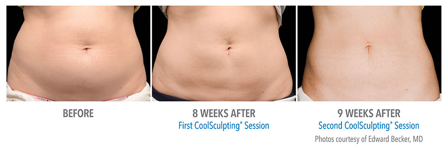 CoolScuplting - Chestnut Hill Plastic Surgery & Aesthetics 4.jpg