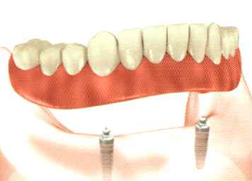 Removable implant overdentures -