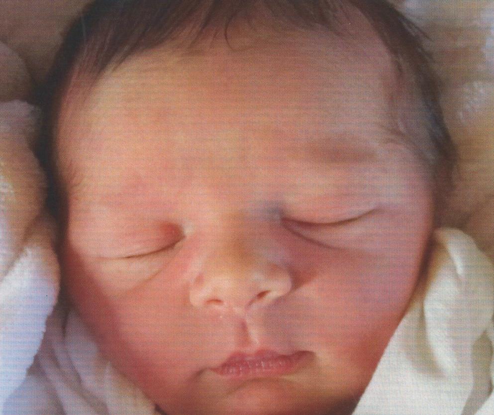Vasectomy Reversal Baby