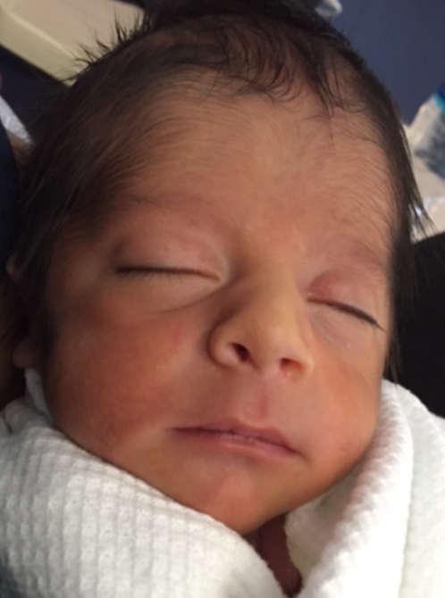 Pennsylvania Vasectomy Reversal Baby