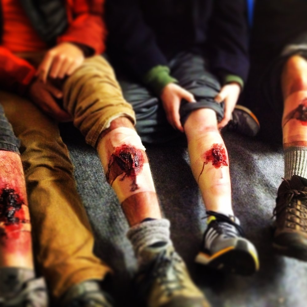 "Stage makeup, called ""moulage,"" is used to simulate traumatic injuries."