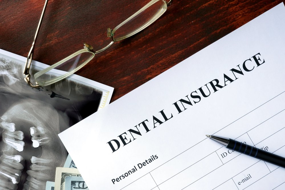 dental-insurance-min.jpg