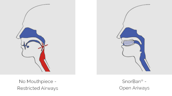 Diagram showing the difference in breathing through airways with and without the SnorBan mouthpiece