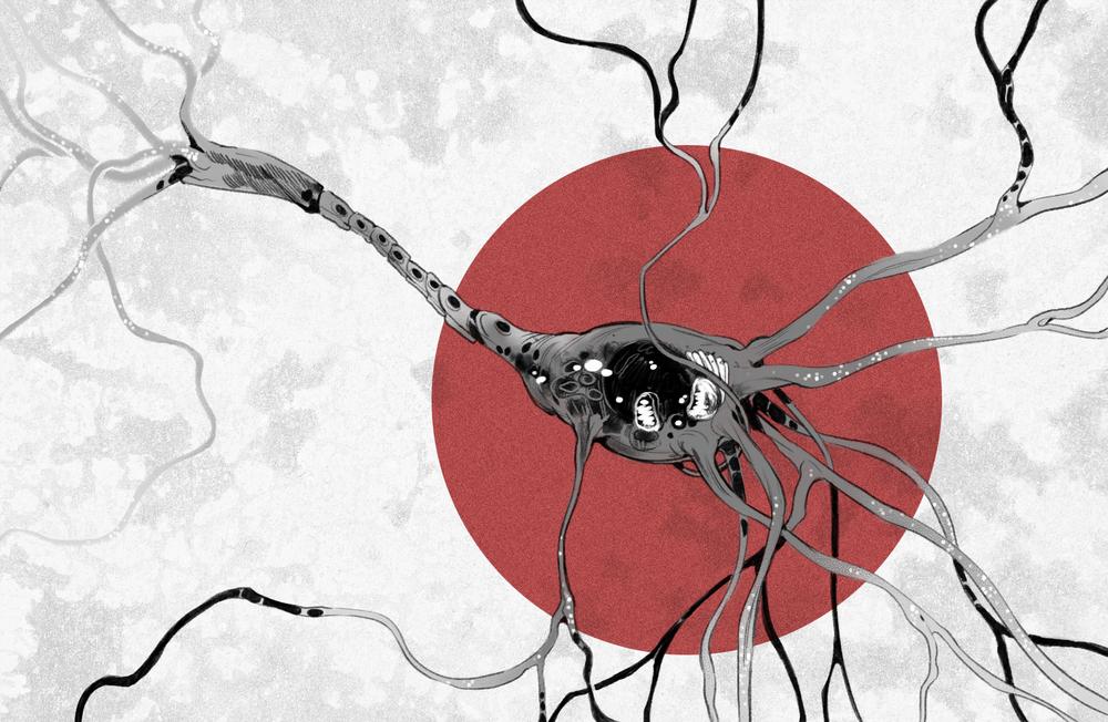 neuron paralysis.png