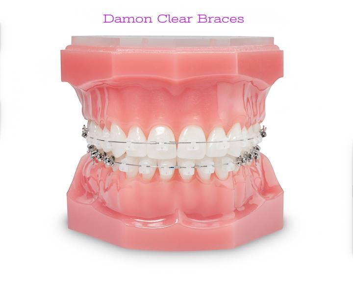 Damon Clear Typodont