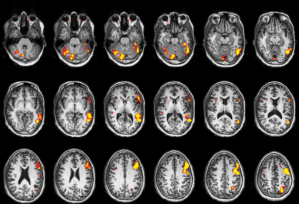 An fMRI map of the brain's language areas for use in surgical planning. Right of the image is the left of the brain (radiological conventions).
