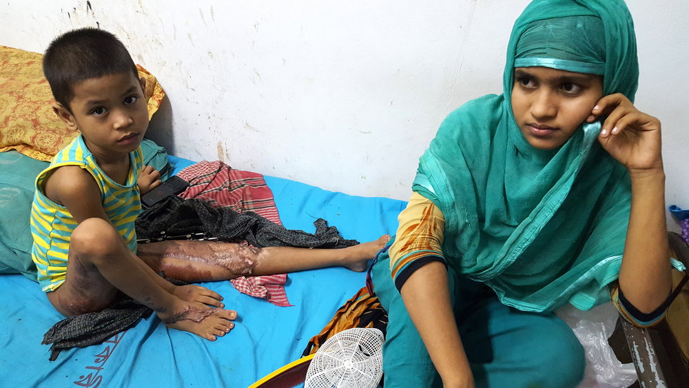 This photo is from Sadar Hospital in Cox's Bazaar –   a town on Bangladesh's southeast coast. The child's legs were burnt by Burmese soldiers; one is also broken. The hospital is full of children with broken limbs and women recovering from rape. Most had to walk on foot for 10 to 15 days in such physical conditions before reaching the Bangladeshi border.
