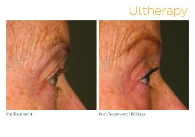 ultherapy_0197c-d_beforeandafter_brow-2_low-res.jpg