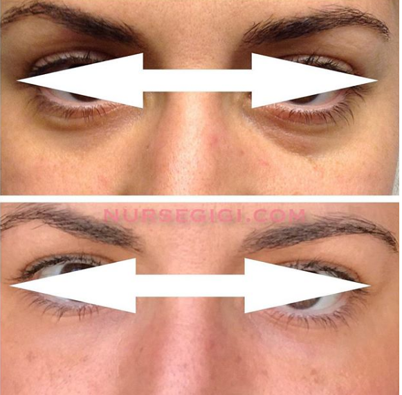 Under eye bags removal and hollow fill with PRP in NYC
