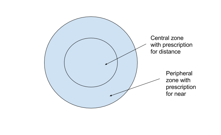 Bifocal contact lenses have two different prescriptions in the lens, one in the periphery and one in the centre of the lens. This allows them to focus peripheral images differently than central images.