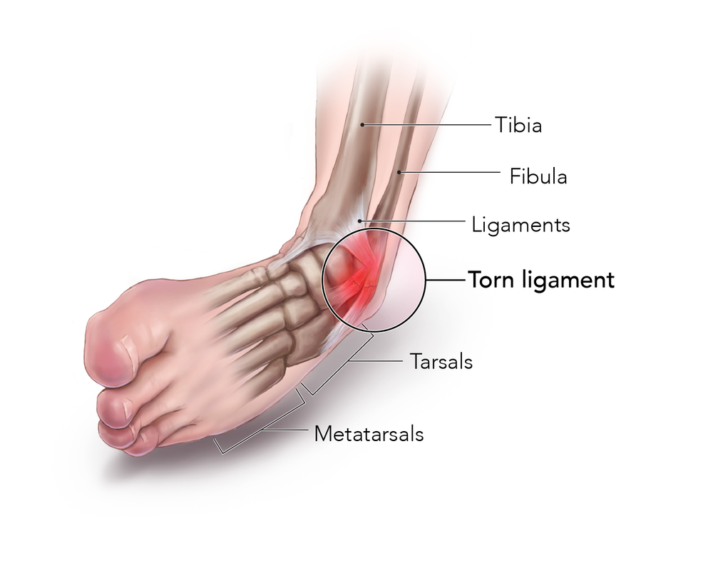 ankle sprain done-01.png