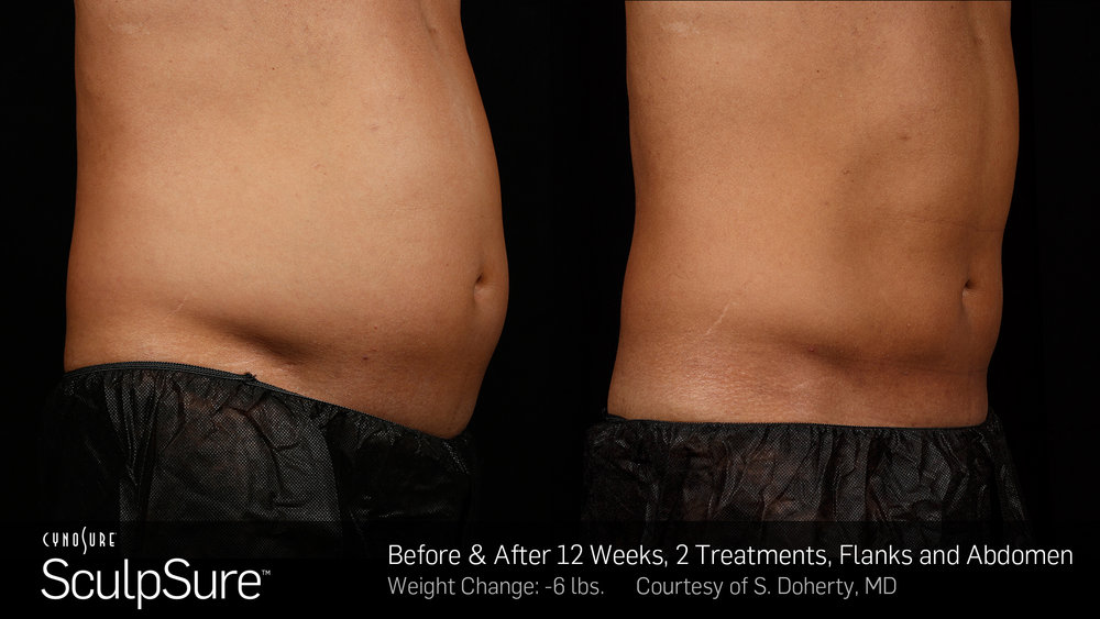 BA-SculpSure-S-Doherty-2TX-12WKs.jpg