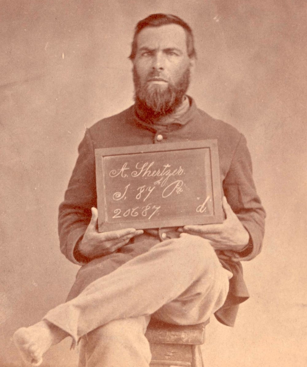 Pvt. Aaron Shertzer, Company I, 87th PA - Mustered in March 1865 - Showing an axe wound to his foot in this image.