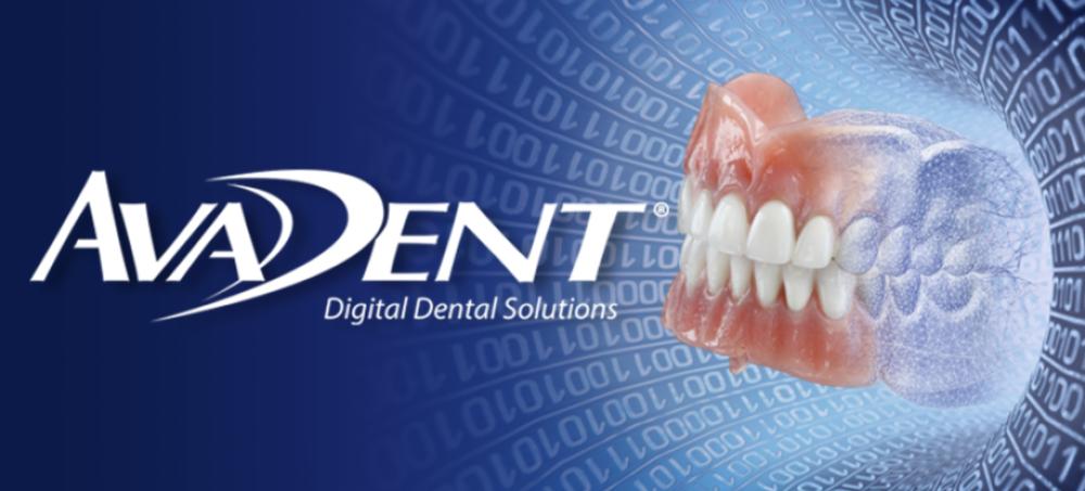 AvaDent Digital Dentures