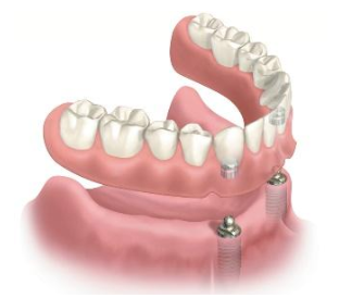 2-Implant retained overdenture