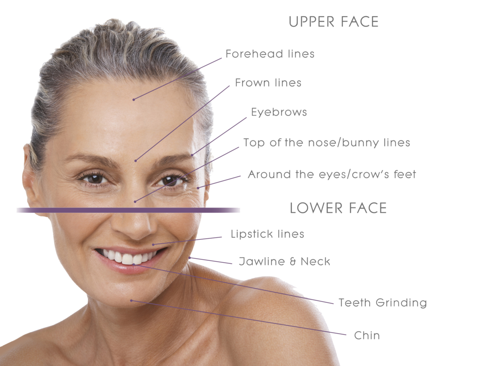 UpperLower-Face-transparent.png