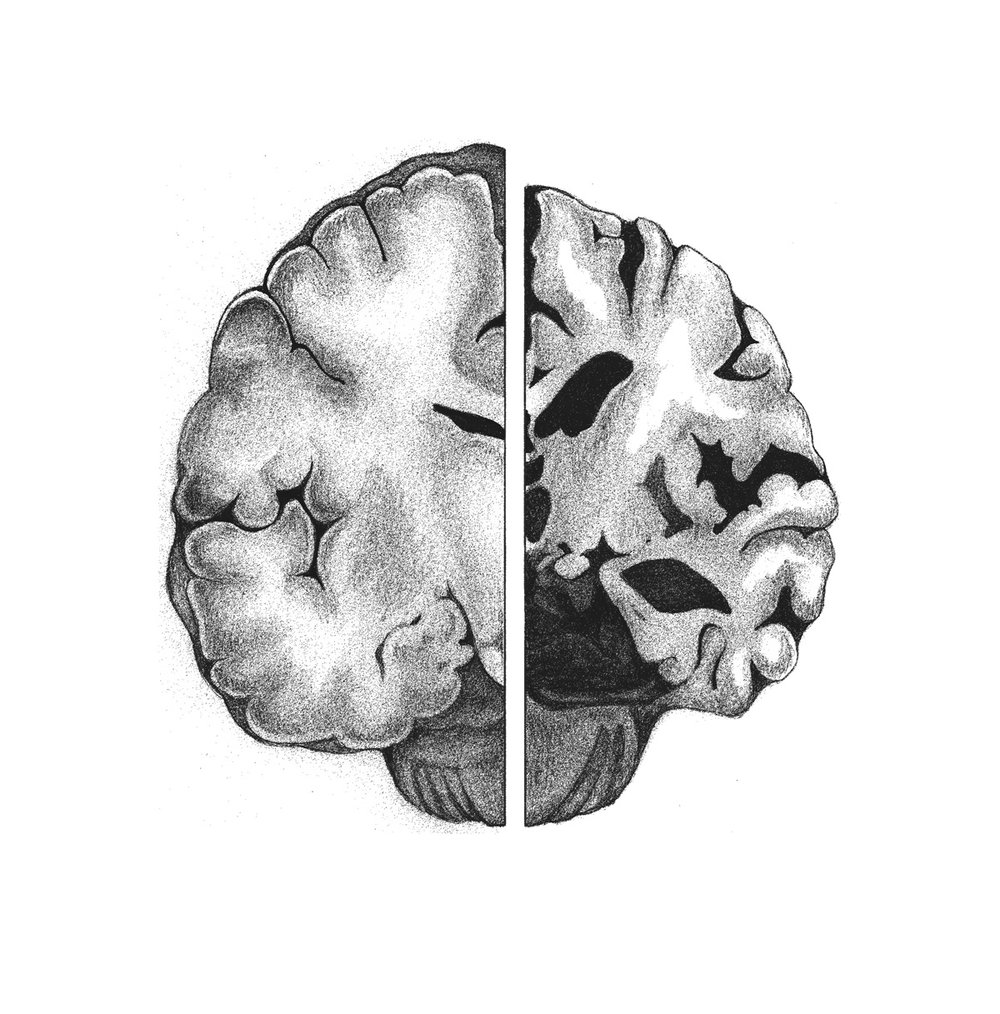 Normal brain (L), afflicted with Alzheimers (R)